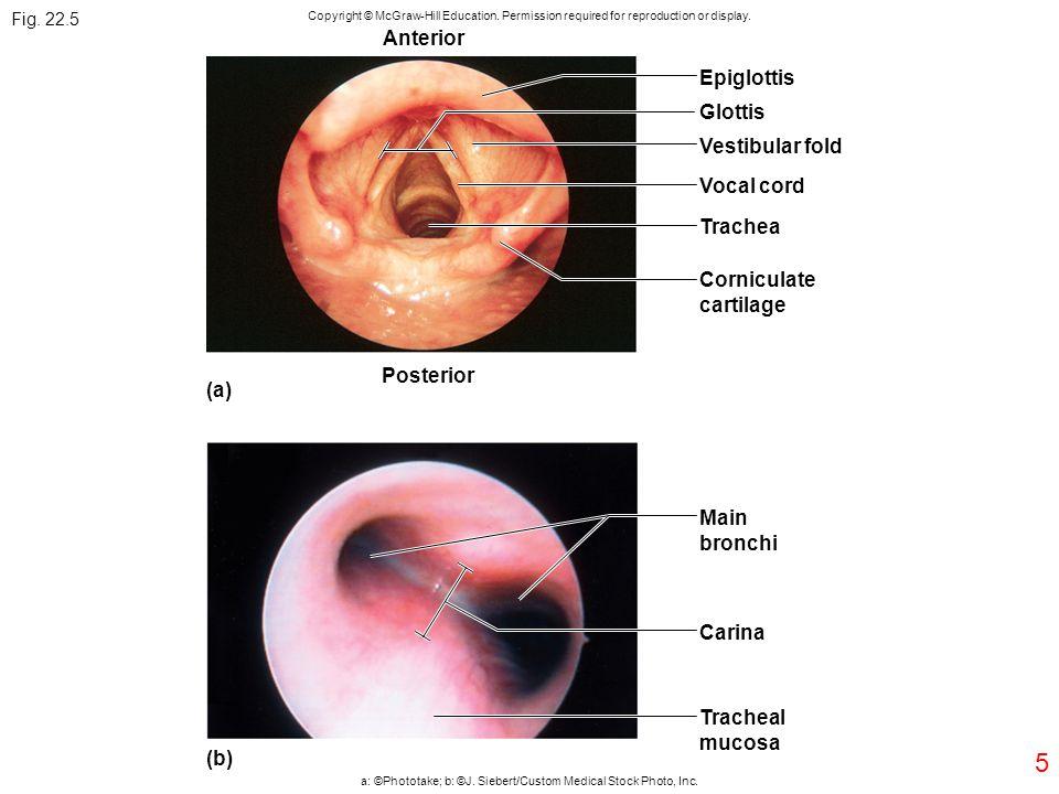 5 Epiglottis Anterior Glottis Vestibular fold Vocal cord Trachea Corniculate cartilage Main bronchi Posterior (a) Carina Tracheal mucosa (b) Fig. 22.5