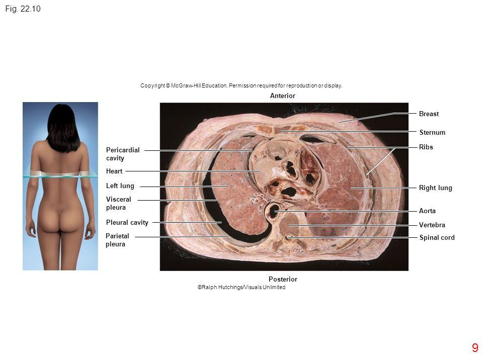 9 Pericardial cavity Heart Left lung Visceral pleura Pleural cavity Parietal pleura Posterior Anterior Breast Sternum Ribs Right lung Aorta Vertebra S