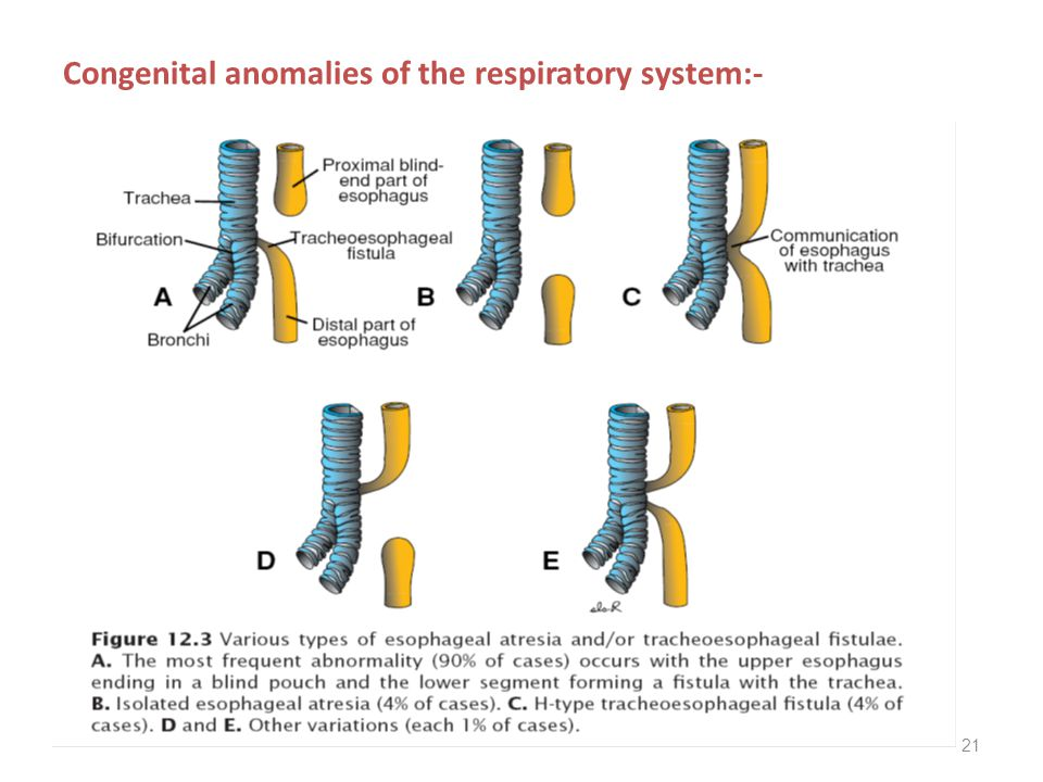 21 Congenital anomalies of the respiratory system:-