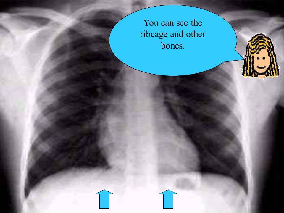 This X ray shows the lungs in the ribcage The person is facing you so the dark area near me is the left lung Can you make out that the left lung is slightly smaller to make room for the heart.