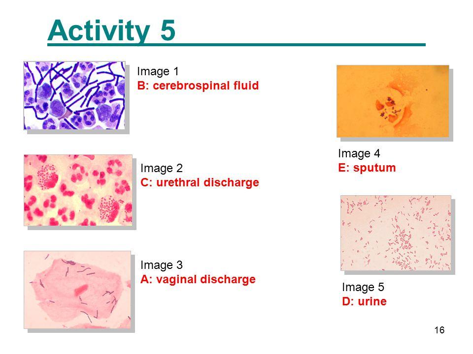16 Activity 5 Image 5 D: urine Image 1 B: cerebrospinal fluid Image 2 C: urethral discharge Image 3 A: vaginal discharge Image 4 E: sputum