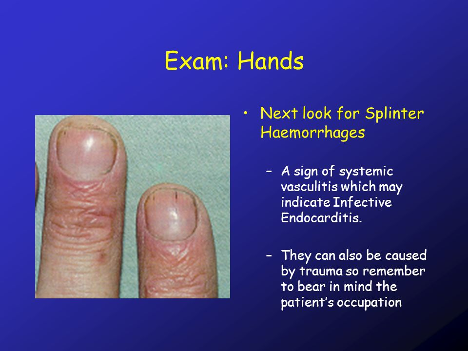 Exam: Hands Next look for Splinter Haemorrhages –A sign of systemic vasculitis which may indicate Infective Endocarditis.