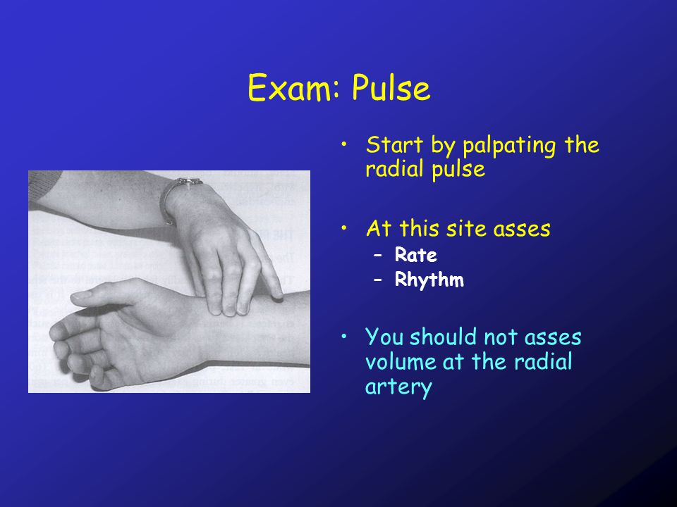Exam: Pulse Start by palpating the radial pulse At this site asses –Rate –Rhythm You should not asses volume at the radial artery