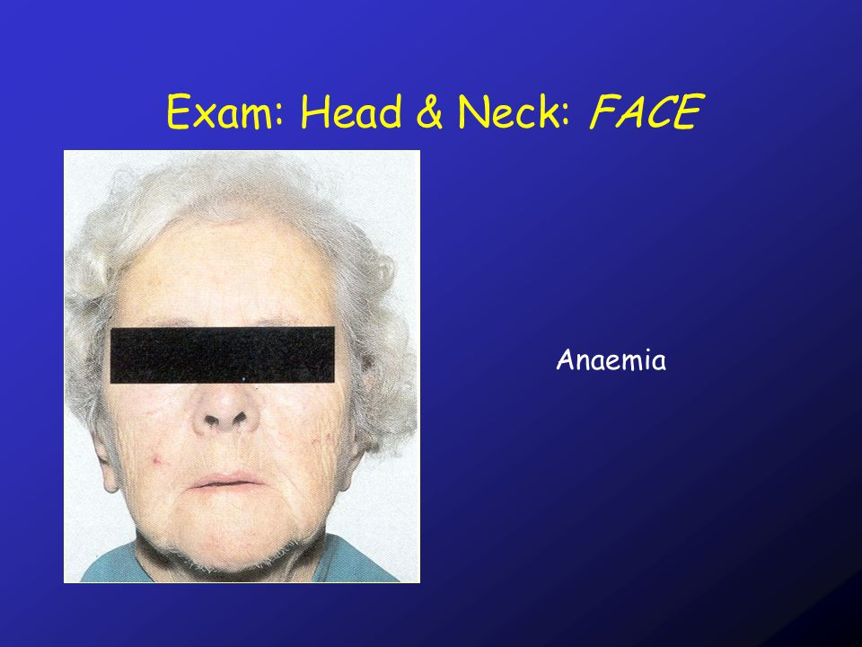 Exam: Head & Neck: FACE Anaemia