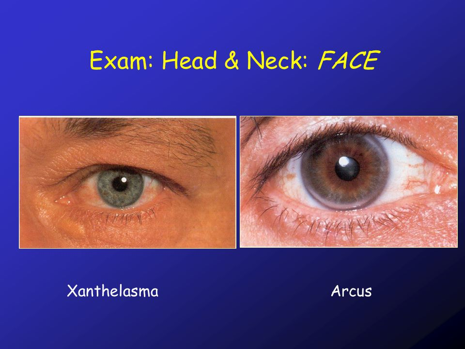 Exam: Head & Neck: FACE XanthelasmaArcus