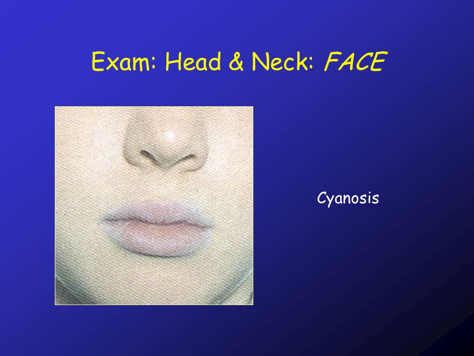 Exam: Head & Neck: JVP The JVP is best examined by looking across the neck.