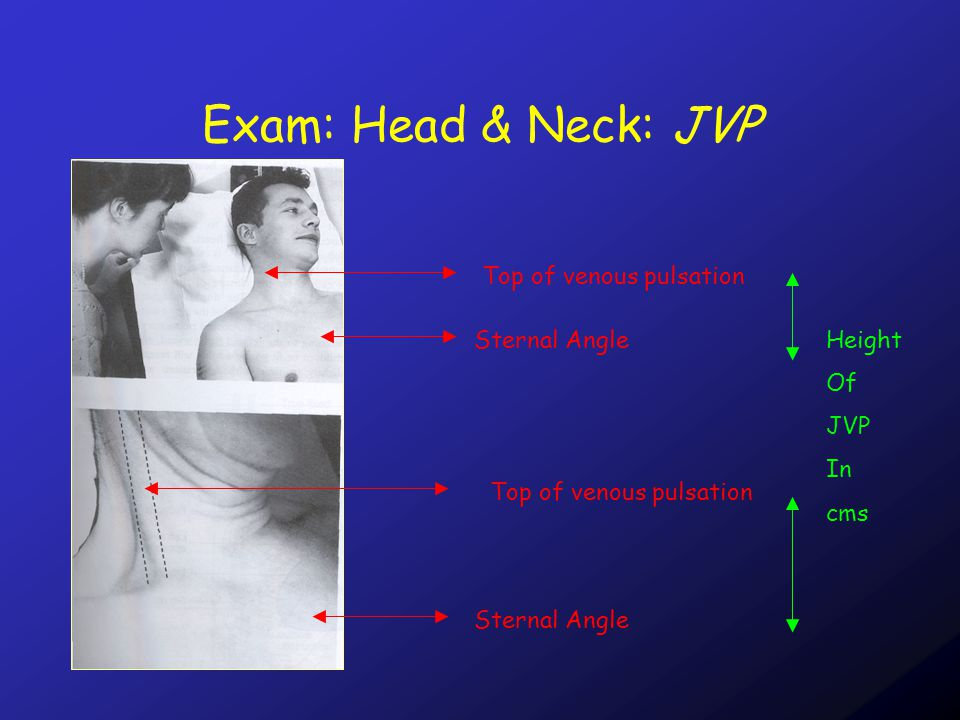 Exam: Head & Neck: JVP Carotid Pulsation –1 per cardiac cycle –Palpable –Position independent –Does not enhance with hepatojugualr –reflex JVP Pulsation –2 per cardiac cycle –Not palpable –Varies depending on position –Enhances with hepatojugular reflex