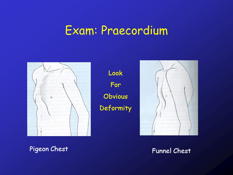 Exam: Praecordium Look For Obvious Deformity Pigeon Chest Funnel Chest