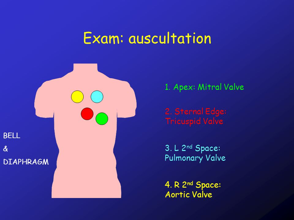 Exam: auscultation Heart Sounds: LubDub FirstSecond Mitral Valve Tricuspid Valve Aortic Valve Pulmonary Valve