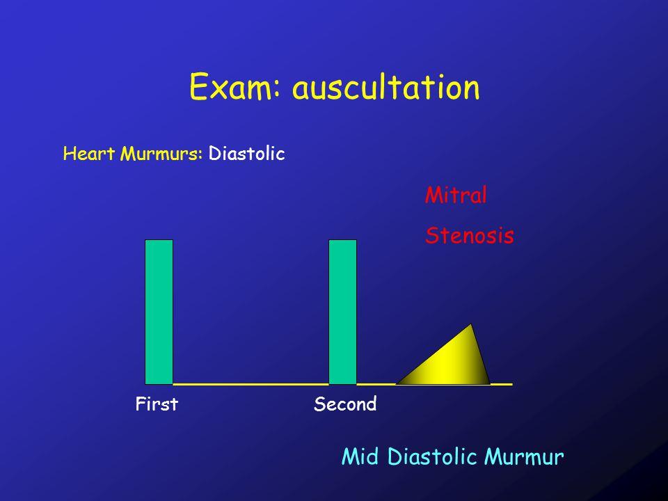 Exam: auscultation Heart Murmurs: Diastolic FirstSecond Mid Diastolic Murmur Mitral Stenosis