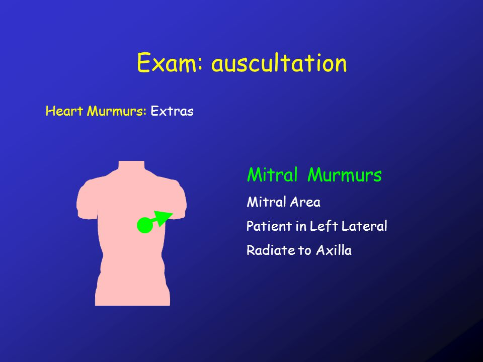 Exam: auscultation Heart Murmurs: Extras Mitral Murmurs Mitral Area Patient in Left Lateral Radiate to Axilla