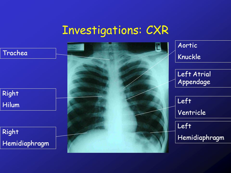 Investigations: CXR Right Hemidiaphragm Left Hemidiaphragm TracheaRight Hilum Left Ventricle Left Atrial Appendage Aortic Knuckle