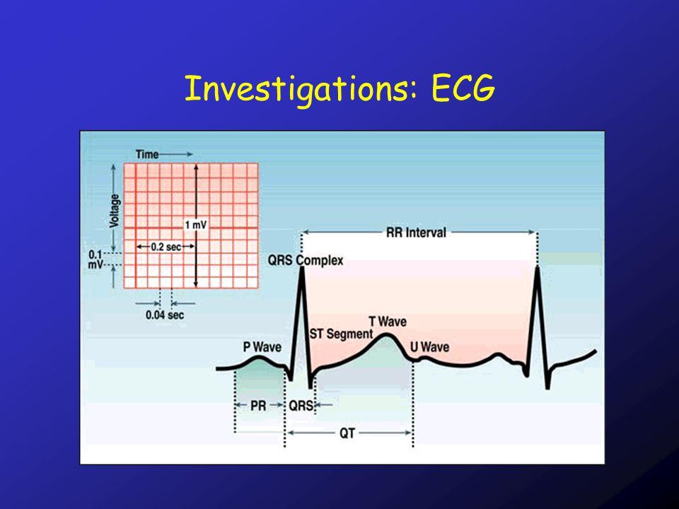 Investigations: ECG