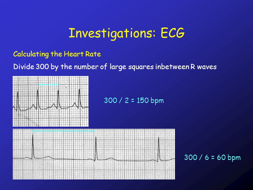 Calculating the Heart Rate Divide 300 by the number of large squares inbetween R waves 300 / 2 = 150 bpm 300 / 6 = 60 bpm