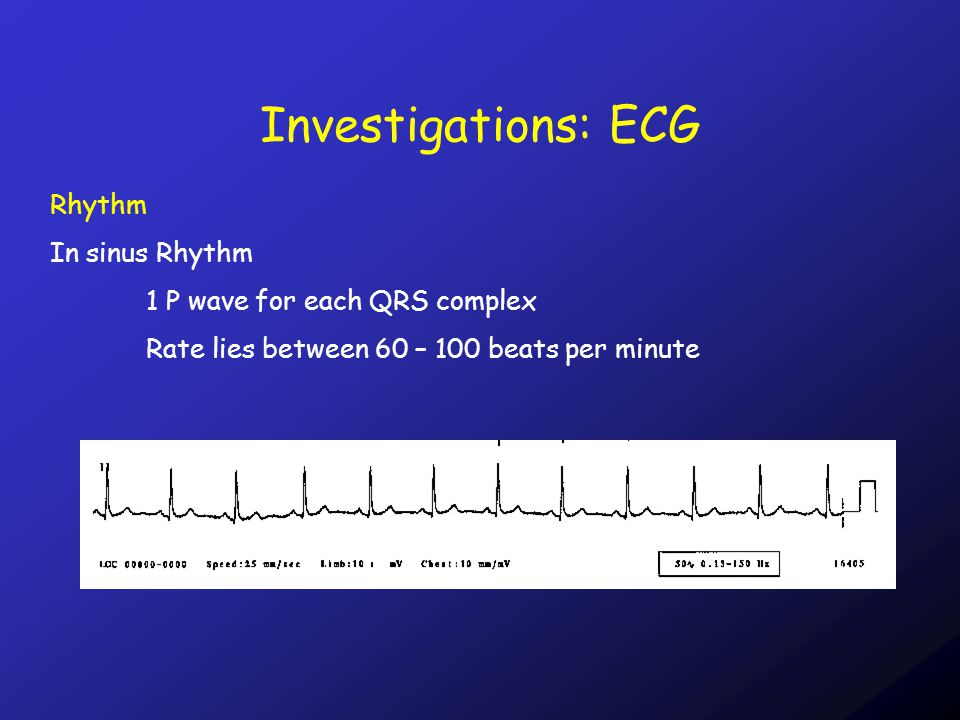 Investigations: ECG Rhythm In sinus Rhythm 1 P wave for each QRS complex Rate lies between 60 – 100 beats per minute