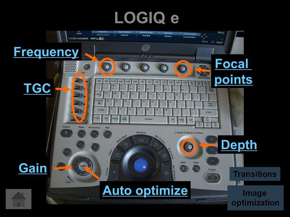 LOGIQ e Auto optimize Gain Depth TGC Focal points Frequency Image optimization Transitions