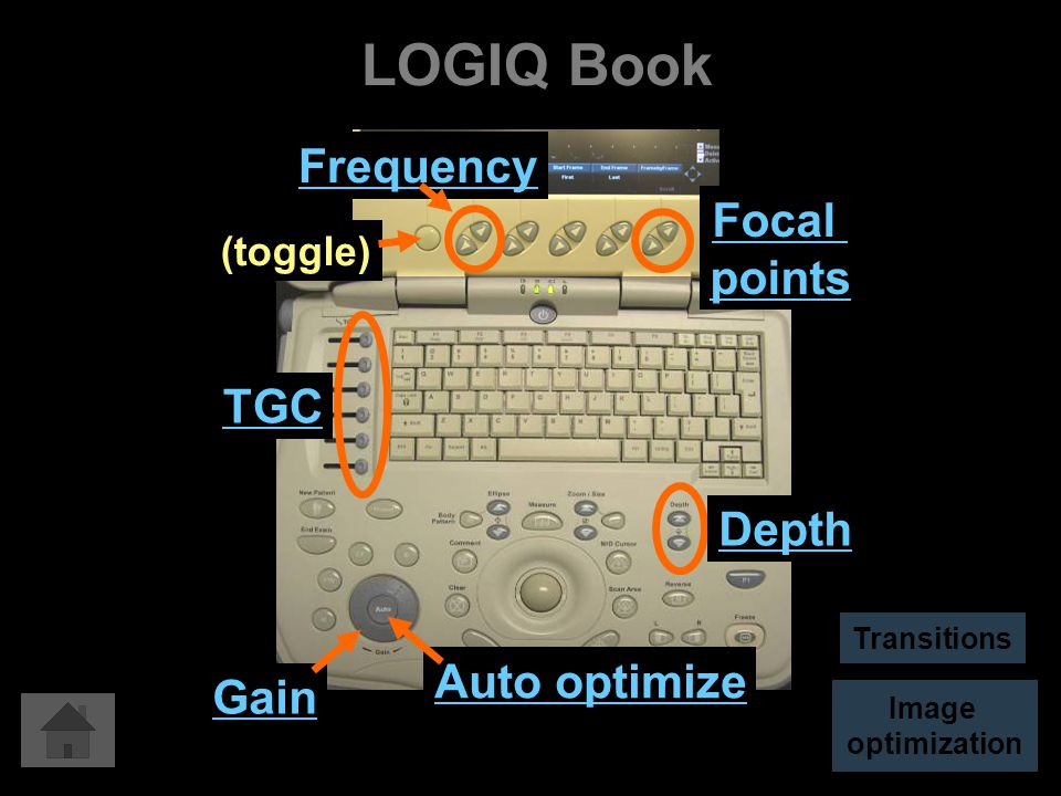 LOGIQ Book Auto optimize Gain Depth TGC Focal points Frequency (toggle) Image optimization Transitions