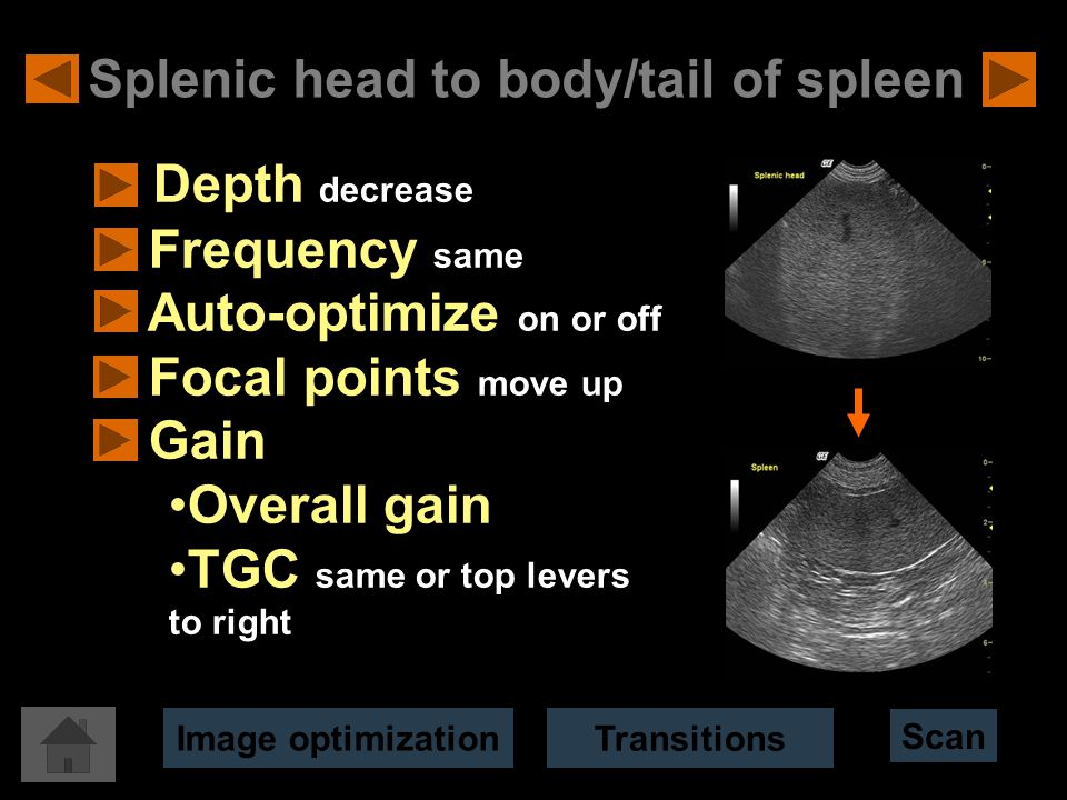 Splenic head to body/tail of spleen Depth decrease Frequency same Auto-optimize on or off Focal points move up Gain Overall gain TGC same or top levers to right Scan Image optimization Transitions