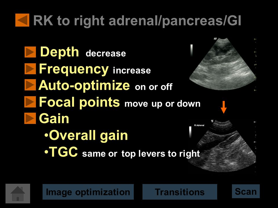 RK to right adrenal/pancreas/GI Depth decrease Frequency increase Auto-optimize on or off Focal points move up or down Gain Overall gain TGC same or top levers to right Scan Image optimization Transitions