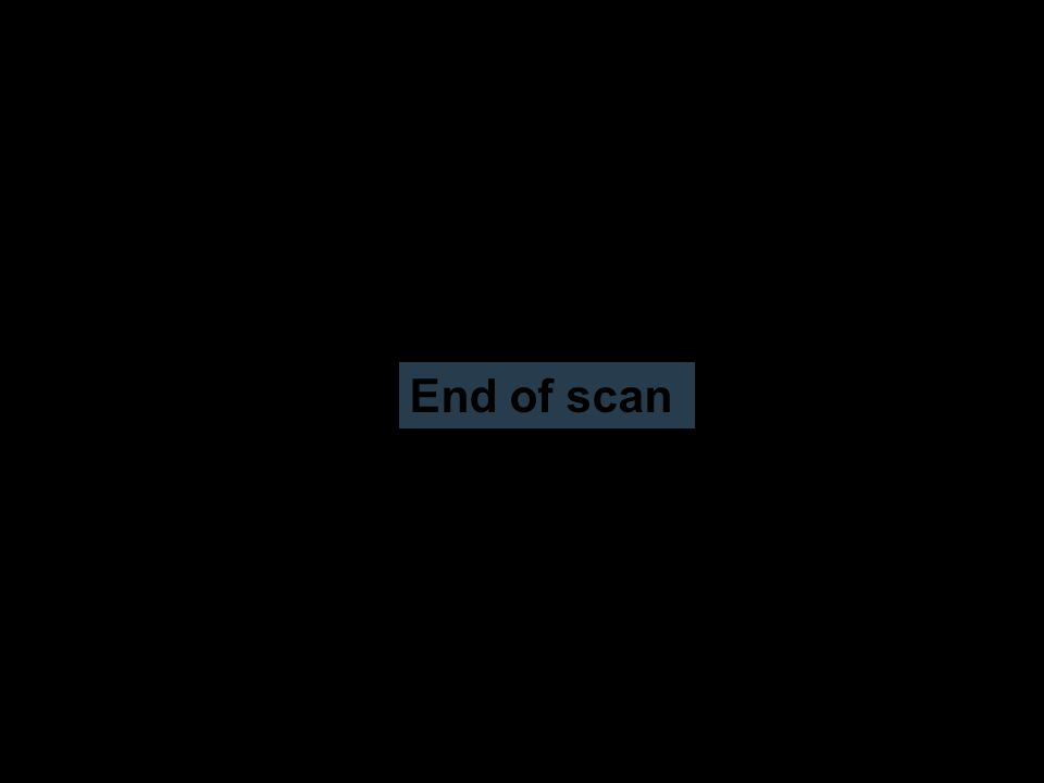 End of scan