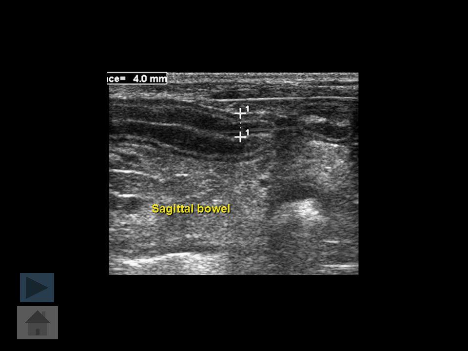 Sagittal bowel
