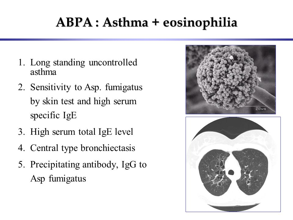 ABPA : Asthma + eosinophilia 1.Long standing uncontrolled asthma 2.Sensitivity to Asp. fumigatus by skin test and high serum specific IgE 3.High serum