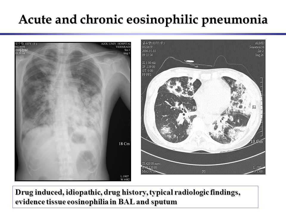 Acute and chronic eosinophilic pneumonia Drug induced, idiopathic, drug history, typical radiologic findings, evidence tissue eosinophilia in BAL and