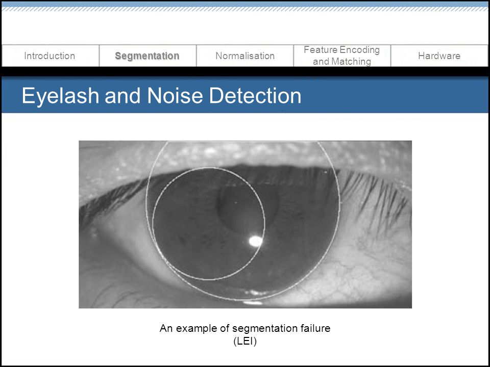 Eyelash and Noise Detection IntroductionSegmentationNormalisation Feature Encoding and Matching Hardware An example of segmentation failure (LEI)