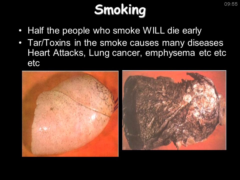 09:55Smoking Half the people who smoke WILL die early Tar/Toxins in the smoke causes many diseases Heart Attacks, Lung cancer, emphysema etc etc etc