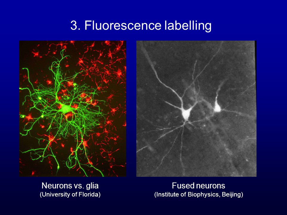 3. Fluorescence labelling Neurons vs.