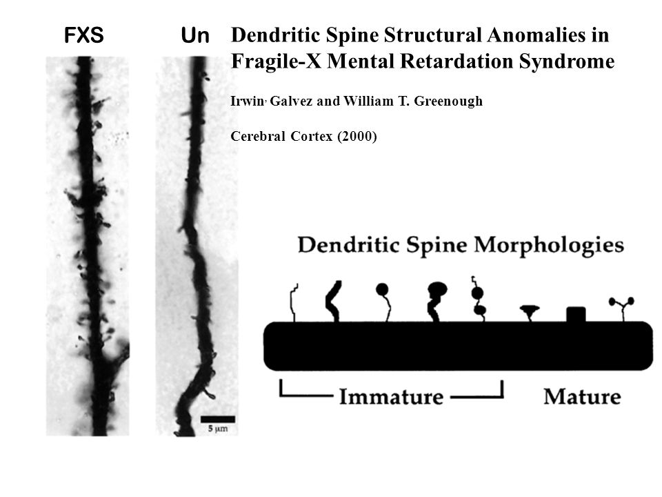 FXSUn Dendritic Spine Structural Anomalies in Fragile-X Mental Retardation Syndrome Irwin, Galvez and William T.