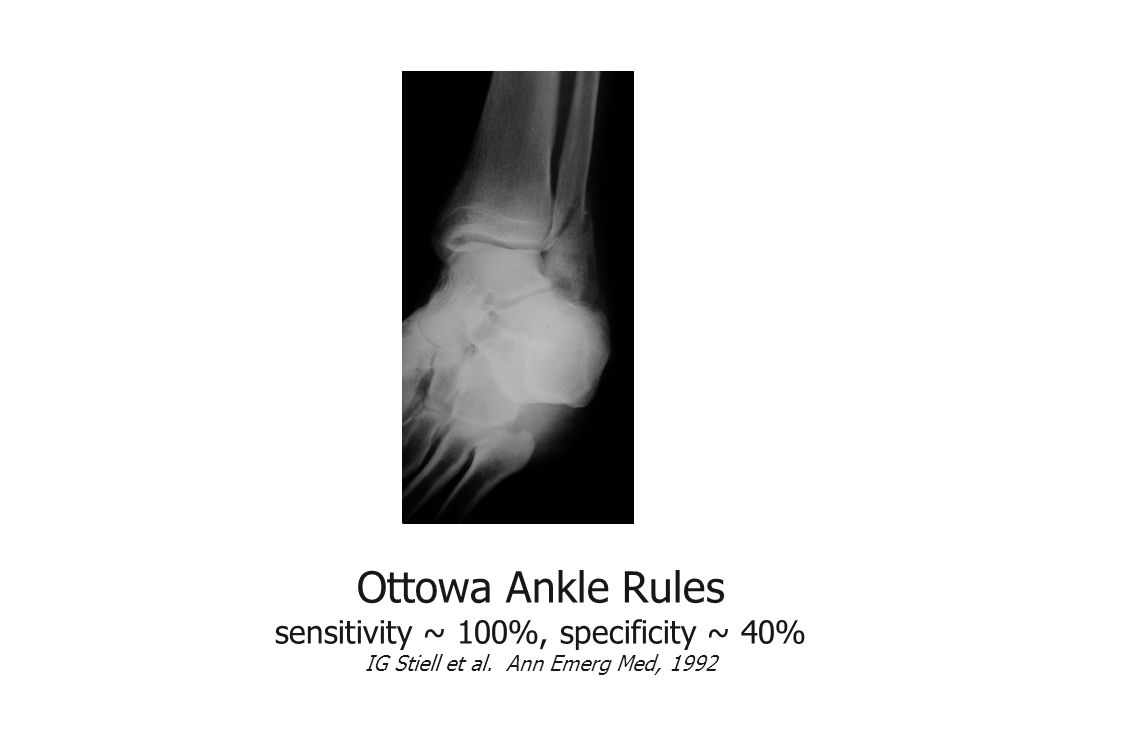 Ottowa Ankle Rules sensitivity ~ 100%, specificity ~ 40% IG Stiell et al. Ann Emerg Med, 1992