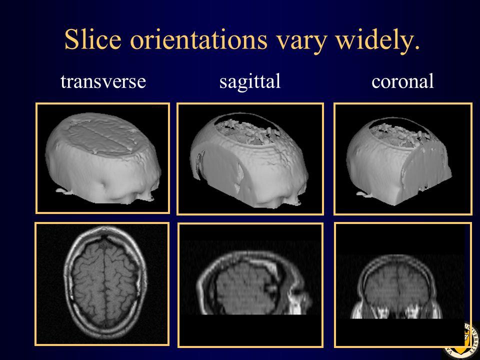 Slice orientations vary widely. transversesagittalcoronal
