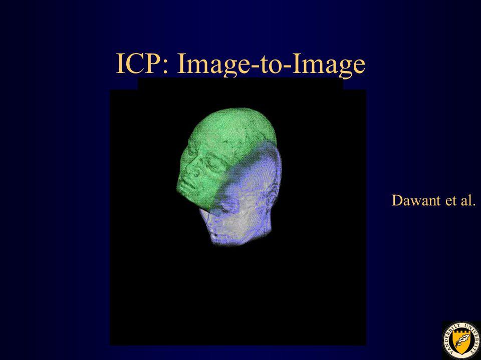 ICP: Image-to-Image Dawant et al.