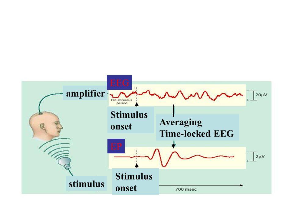 amplifier stimulus Stimulus onset Averaging Time-locked EEG Stimulus onset EEG EP