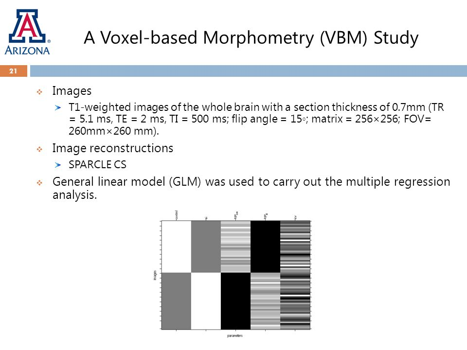 A Voxel-based Morphometry (VBM) Study 21  Images T1-weighted images of the whole brain with a section thickness of 0.7mm (TR = 5.1 ms, TE = 2 ms, TI = 500 ms; flip angle = 15◦; matrix = 256×256; FOV= 260mm×260 mm).