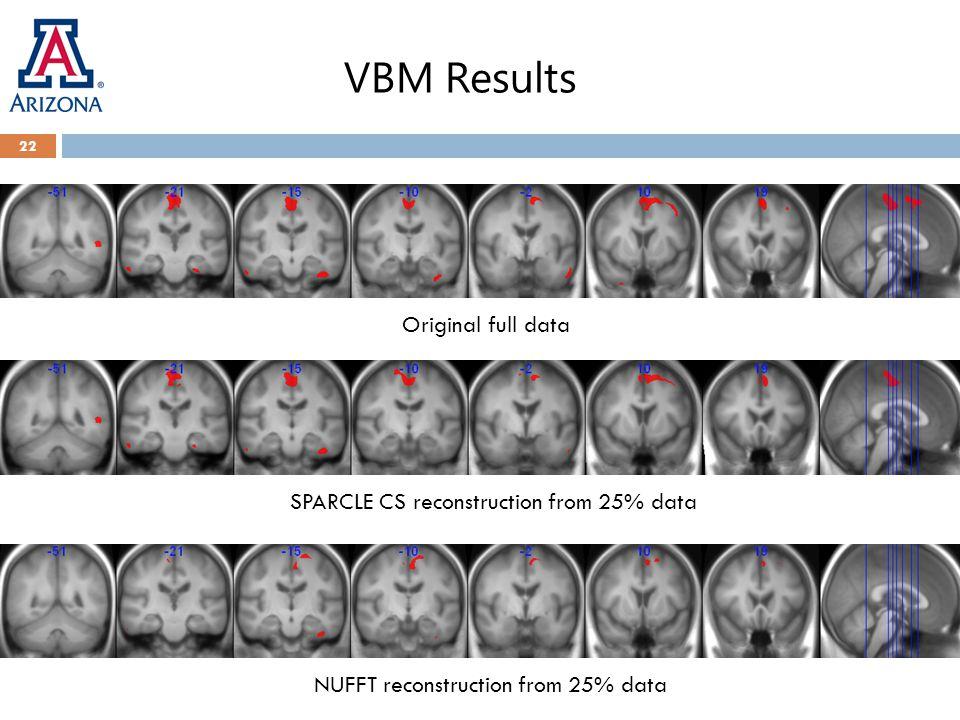 VBM Results 22 Original full data SPARCLE CS reconstruction from 25% data NUFFT reconstruction from 25% data