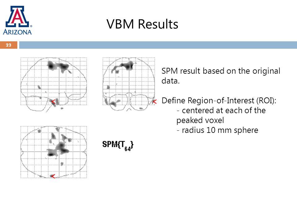 VBM Results 23 SPM result based on the original data.