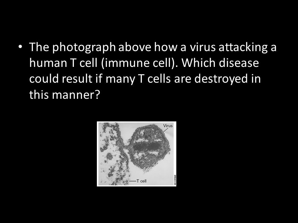 The photograph above how a virus attacking a human T cell (immune cell). Which disease could result if many T cells are destroyed in this manner?
