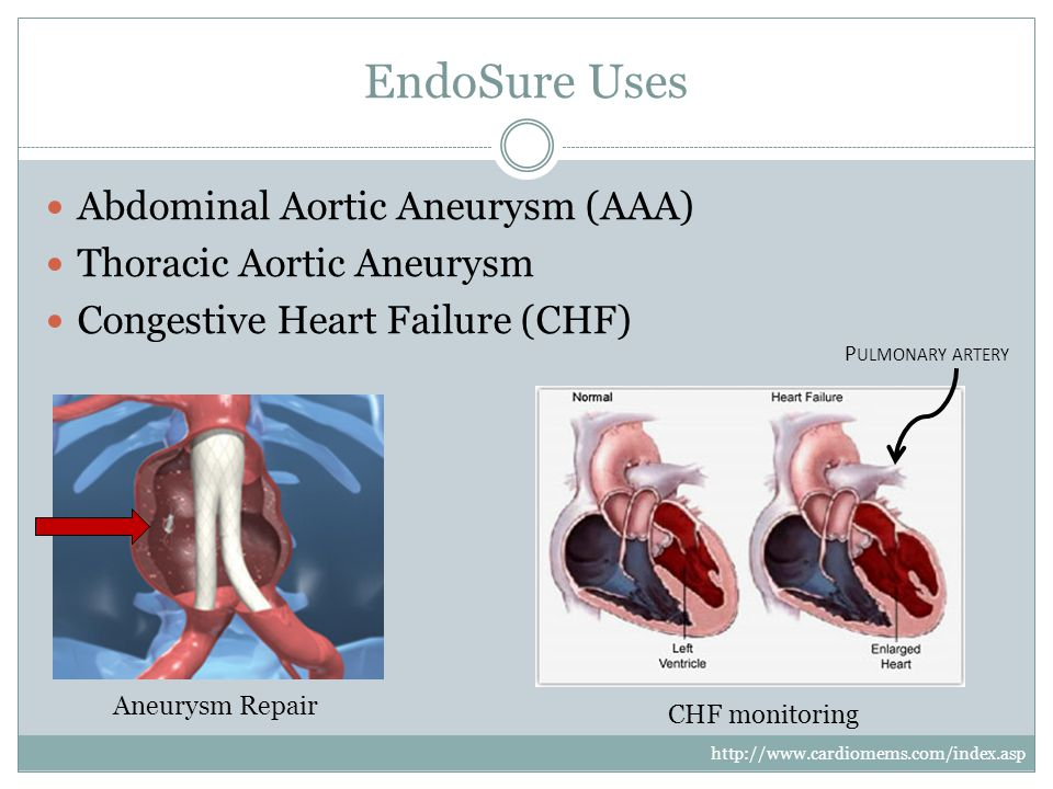EndoSure Uses Abdominal Aortic Aneurysm (AAA) Thoracic Aortic Aneurysm Congestive Heart Failure (CHF) Aneurysm Repair CHF monitoring P ULMONARY ARTERY http://www.cardiomems.com/index.asp
