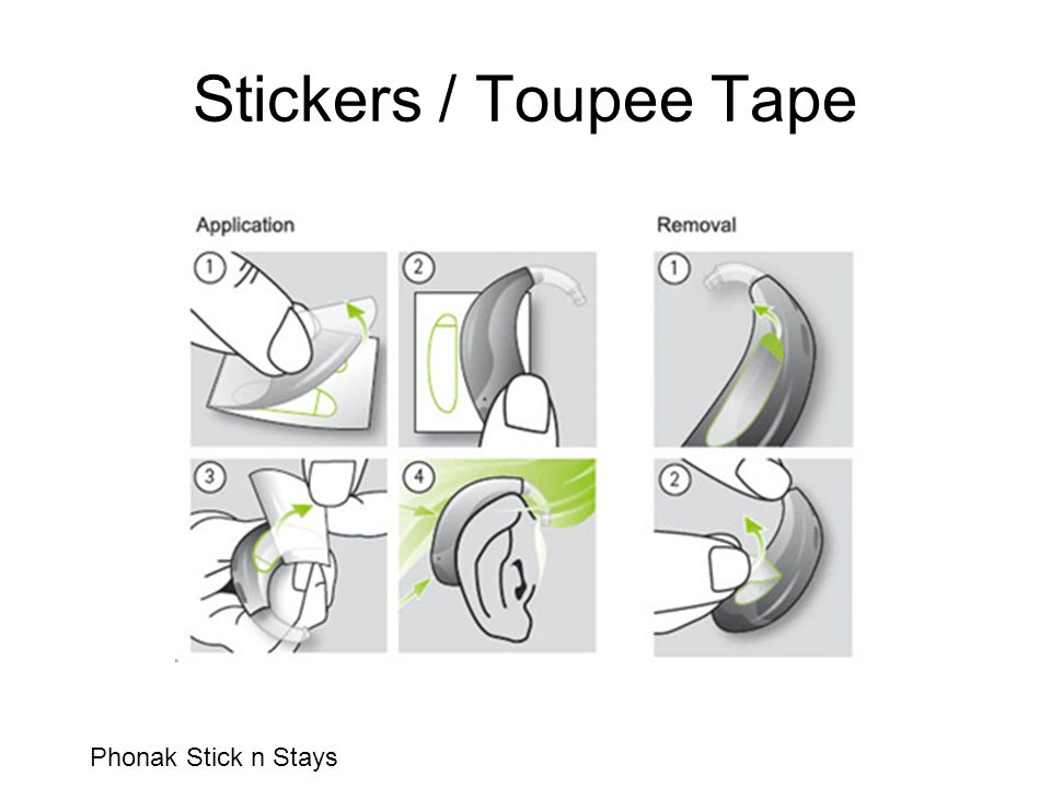 Stickers / Toupee Tape Phonak Stick n Stays