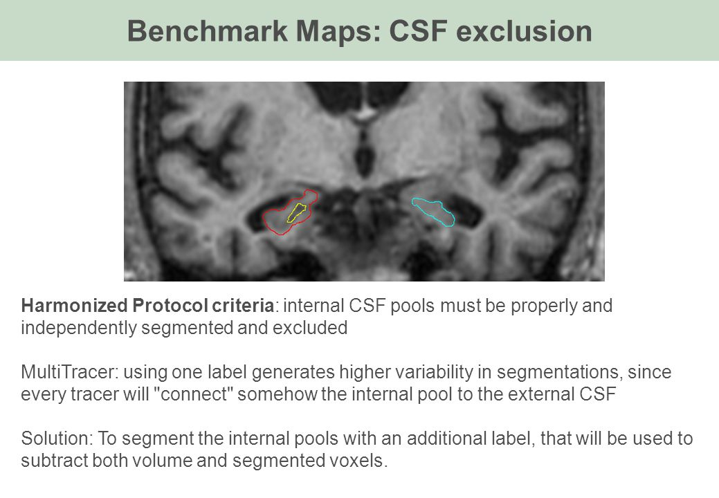 Benchmark Maps: CSF exclusion Harmonized Protocol criteria: internal CSF pools must be properly and independently segmented and excluded MultiTracer: