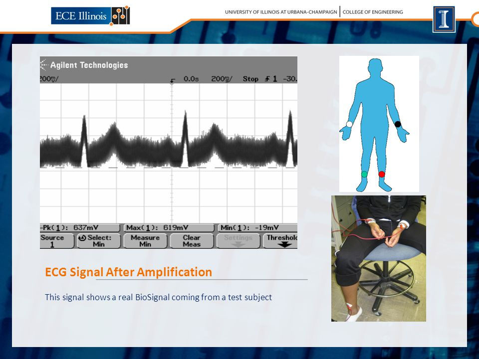 ECG Signal After Amplification This signal shows a real BioSignal coming from a test subject