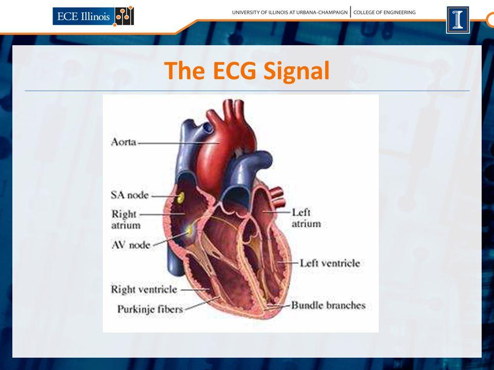 The ECG Signal