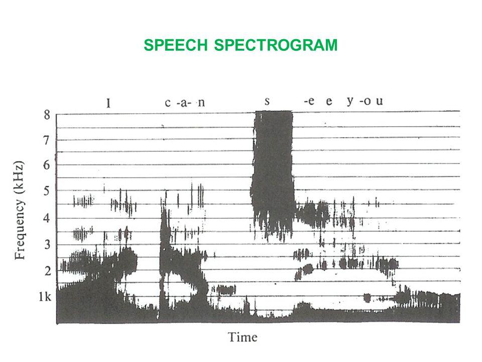 SPEECH SPECTROGRAM