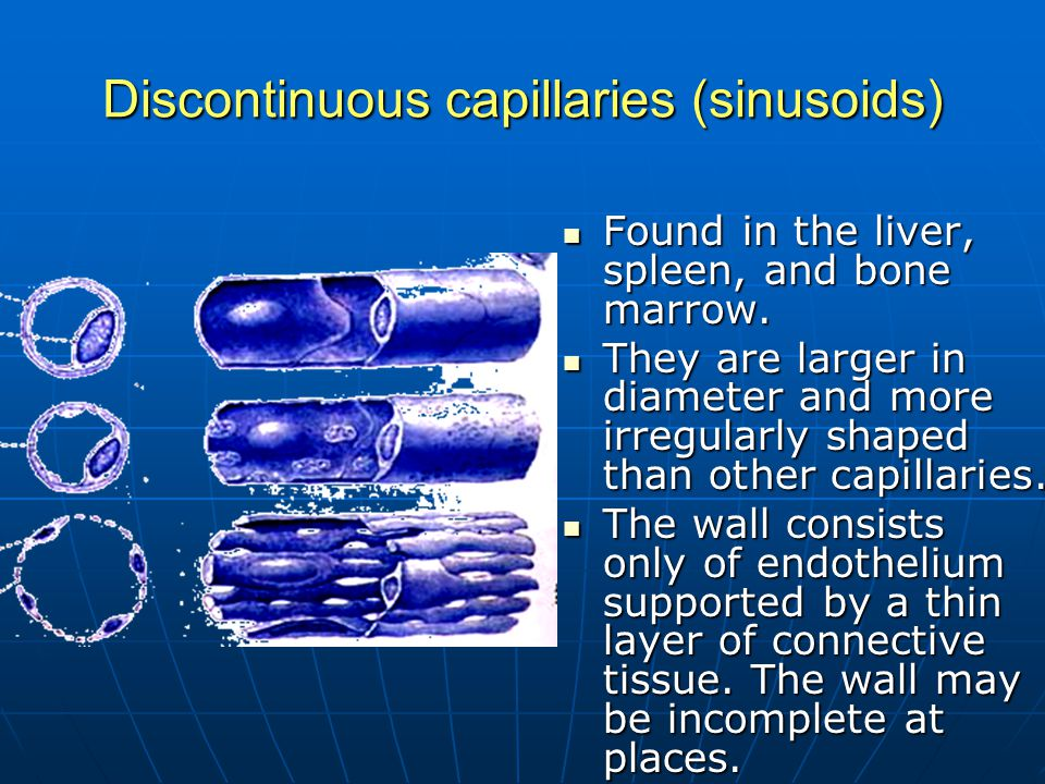 Discontinuous capillaries (sinusoids) Found in the liver, spleen, and bone marrow. Found in the liver, spleen, and bone marrow. They are larger in dia