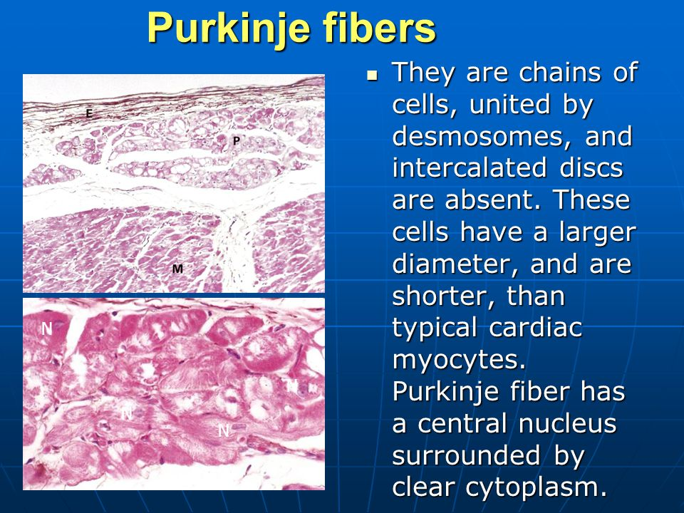 Purkinje fibers They are chains of cells, united by desmosomes, and intercalated discs are absent.