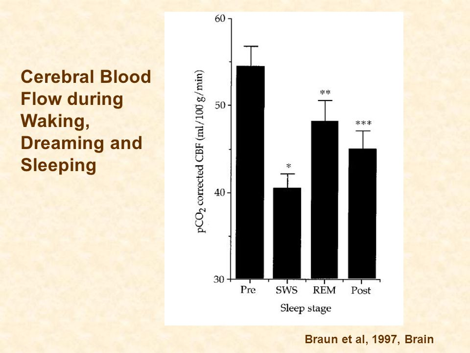 Cerebral Blood Flow during Waking, Dreaming and Sleeping Braun et al, 1997, Brain