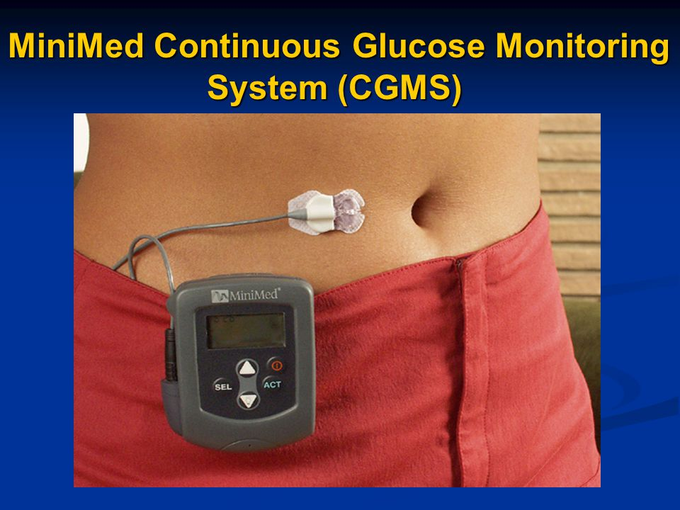 MiniMed Continuous Glucose Monitoring System (CGMS)