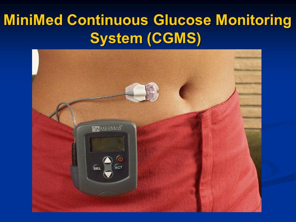 F Interstitial fluid glucose (G2) is almost always comparable with blood glucose (G1) Interstitial Fluid Measurement